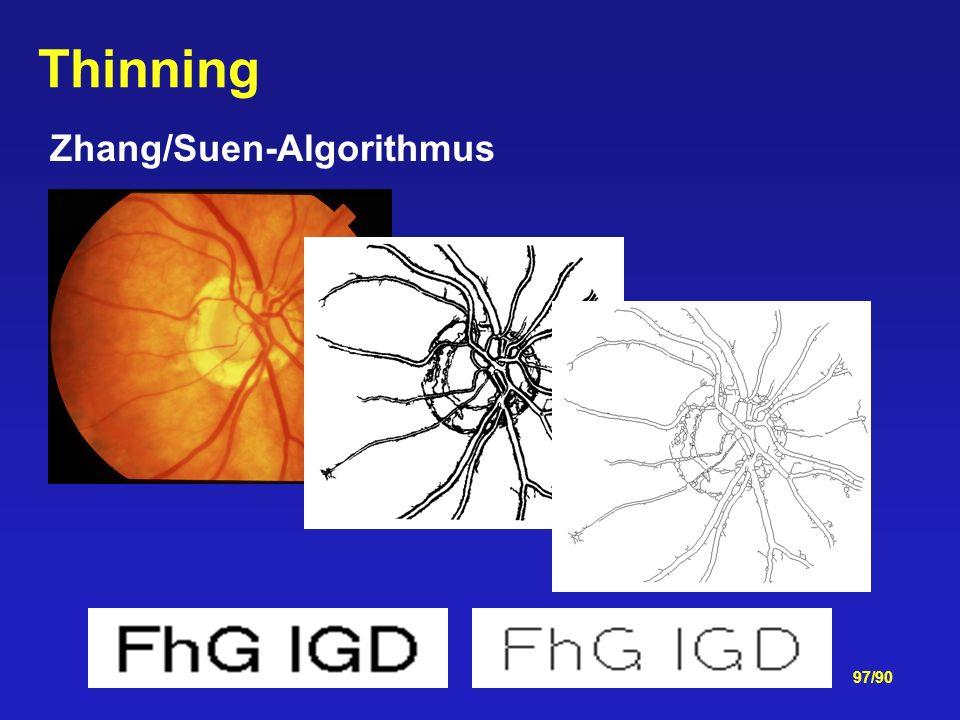 Zhang/Suen-Algorithmus