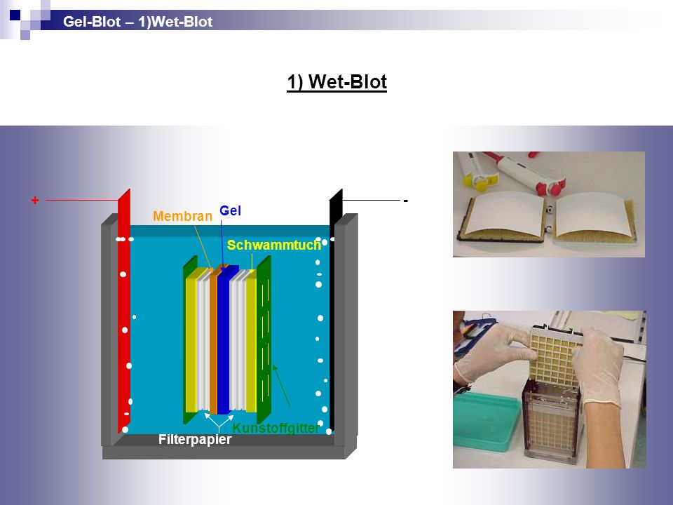 1) Wet-Blot Gel-Blot – 1)Wet-Blot + - Gel Membran Schwammtuch
