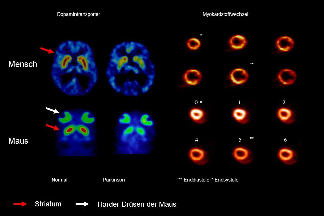Mensch Maus Striatum Harder Drüsen der Maus Dopamintransporter