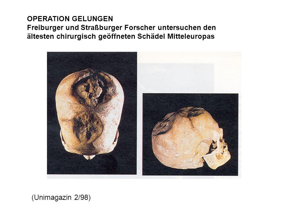 Freiburger und Straßburger Forscher untersuchen den