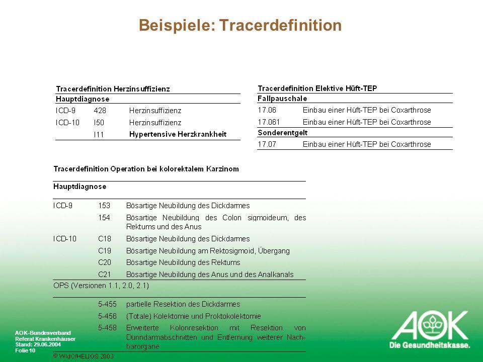 Beispiele: Tracerdefinition