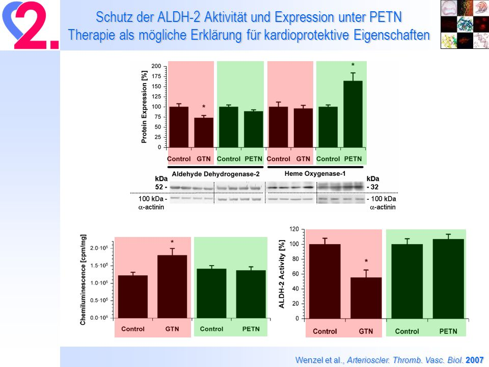 Schutz der ALDH-2 Aktivität und Expression unter PETN Therapie als mögliche Erklärung für kardioprotektive Eigenschaften