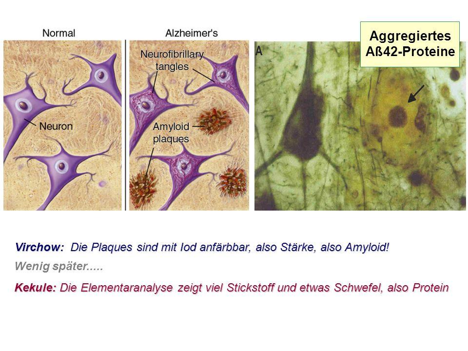 Aggregiertes Aß42-Proteine