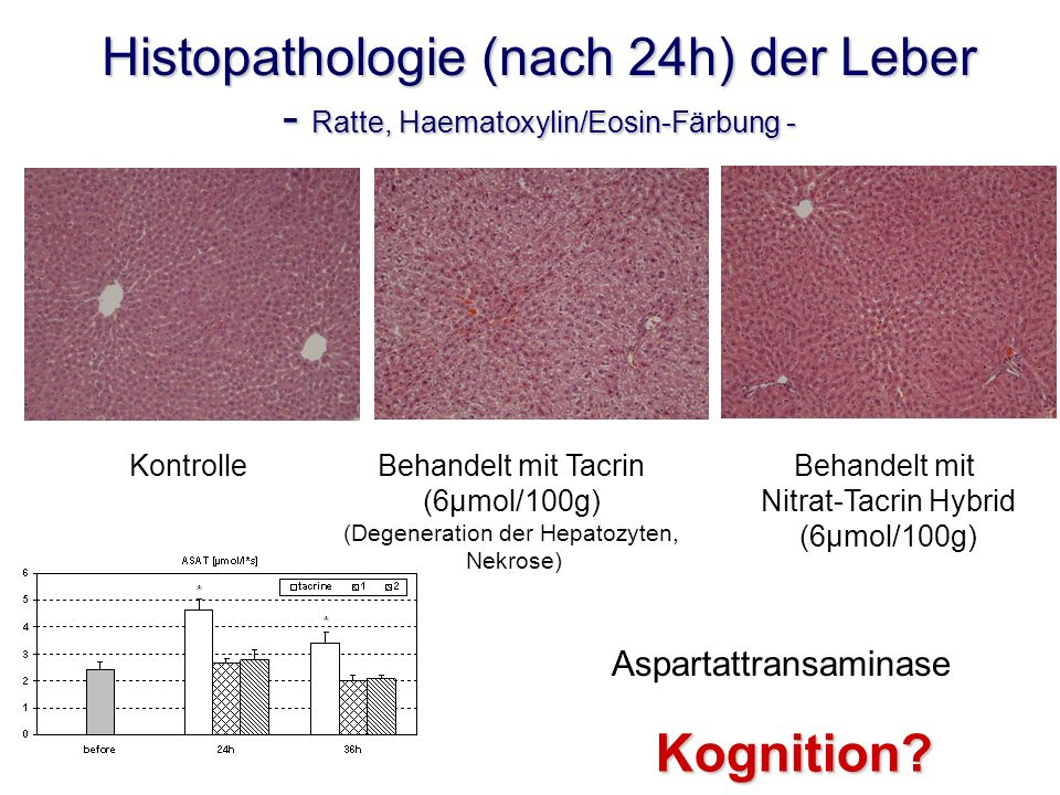 (Degeneration der Hepatozyten,