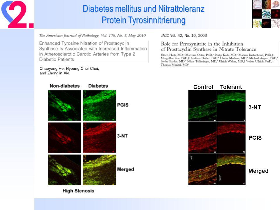 Diabetes mellitus und Nitrattoleranz Protein Tyrosinnitrierung