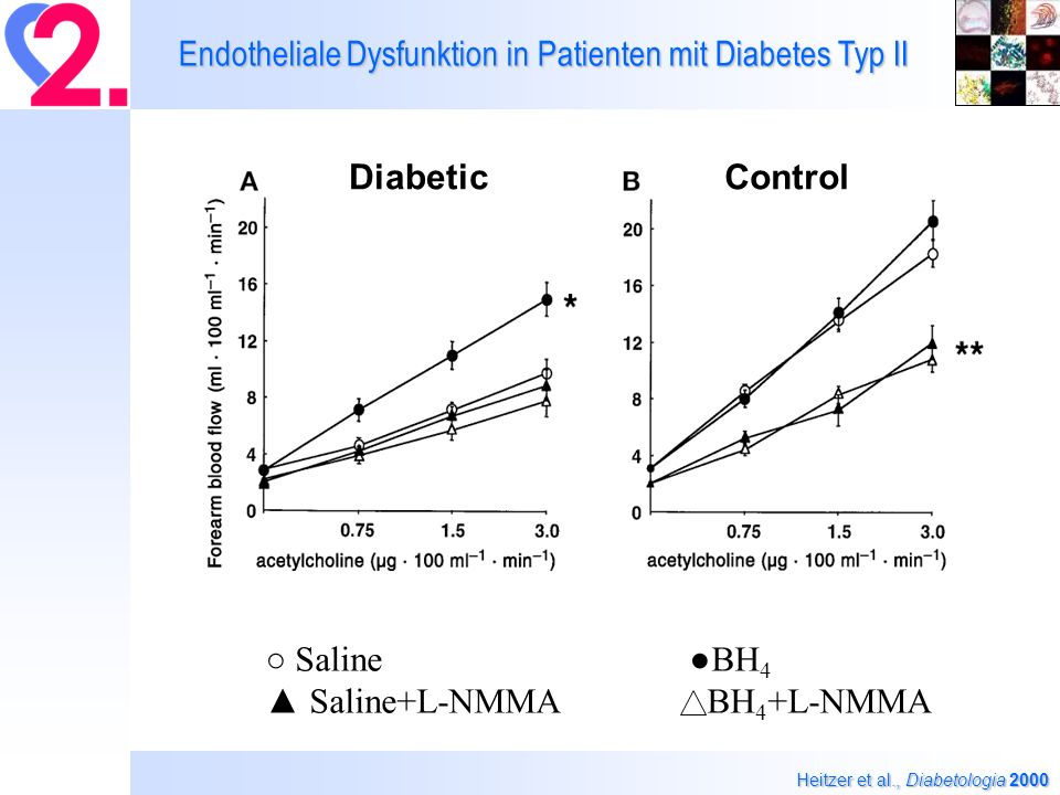 Endotheliale Dysfunktion in Patienten mit Diabetes Typ II
