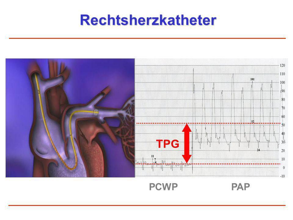 Rechtsherzkatheter TPG PCWP PAP
