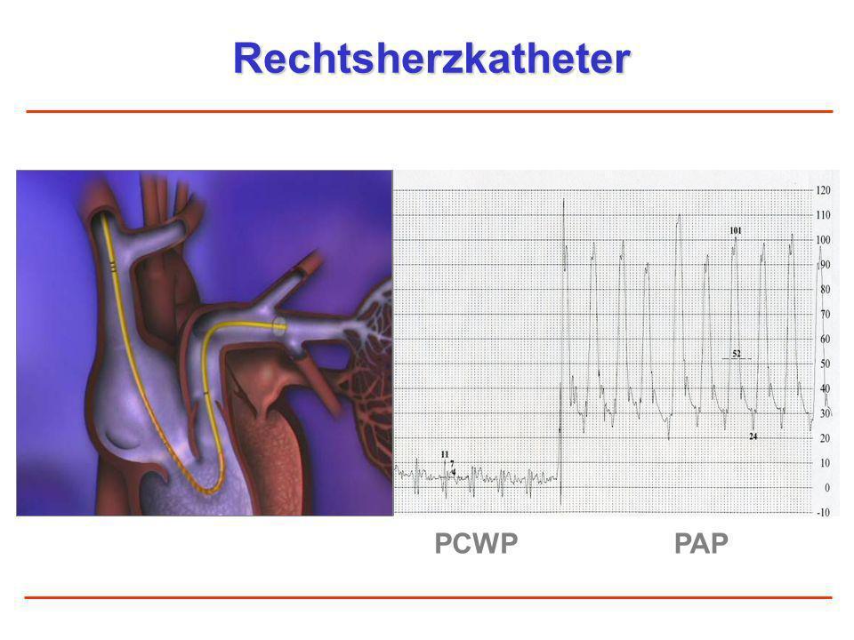 Rechtsherzkatheter PCWP PAP
