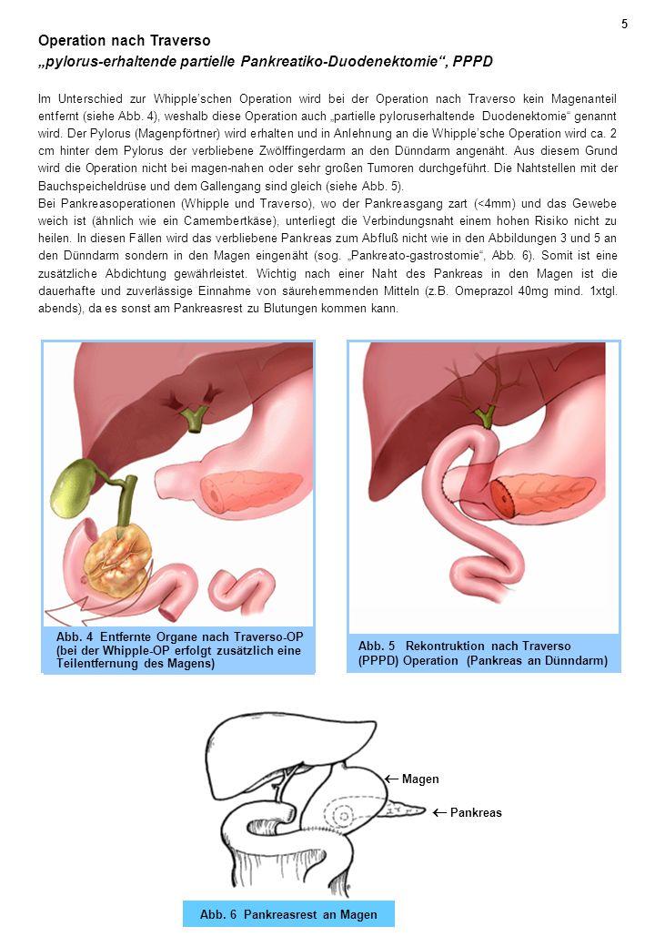 Abb. 6 Pankreasrest an Magen