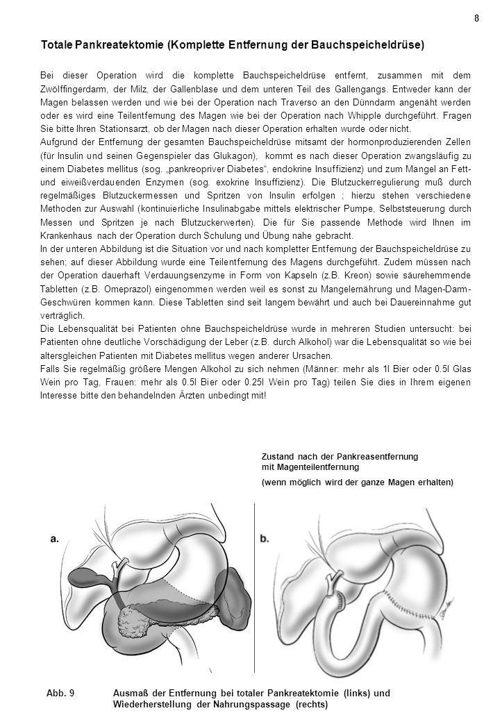 Zustand nach der Pankreasentfernung mit Magenteilentfernung