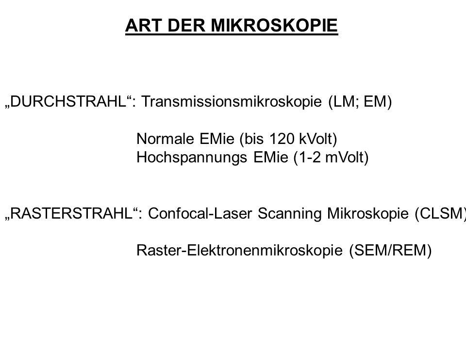 "ART DER MIKROSKOPIE ""DURCHSTRAHL : Transmissionsmikroskopie (LM; EM)"