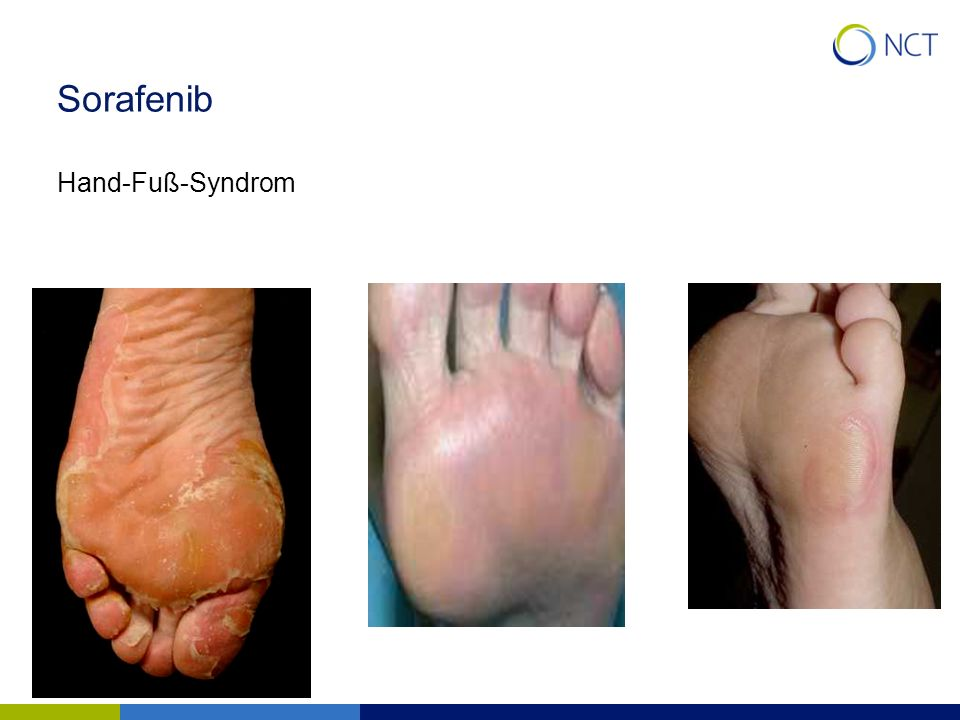 Sorafenib Hand-Fuß-Syndrom