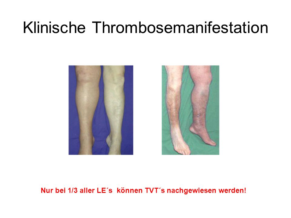 Klinische Thrombosemanifestation