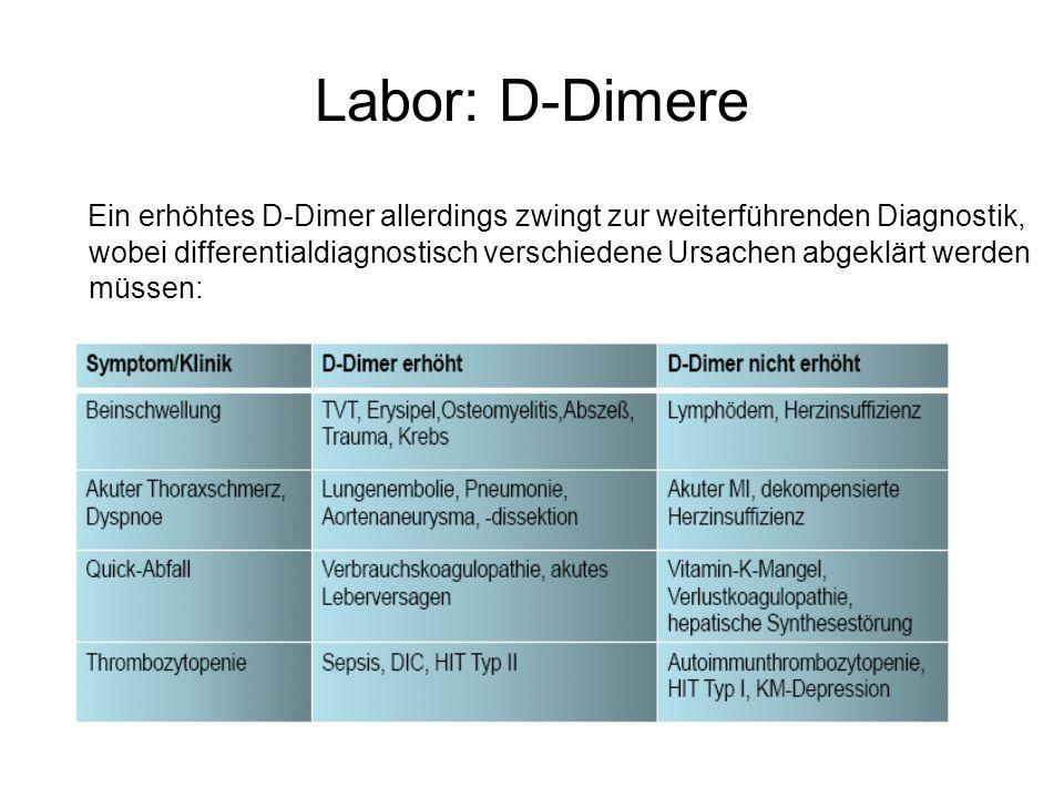 Labor: D-Dimere