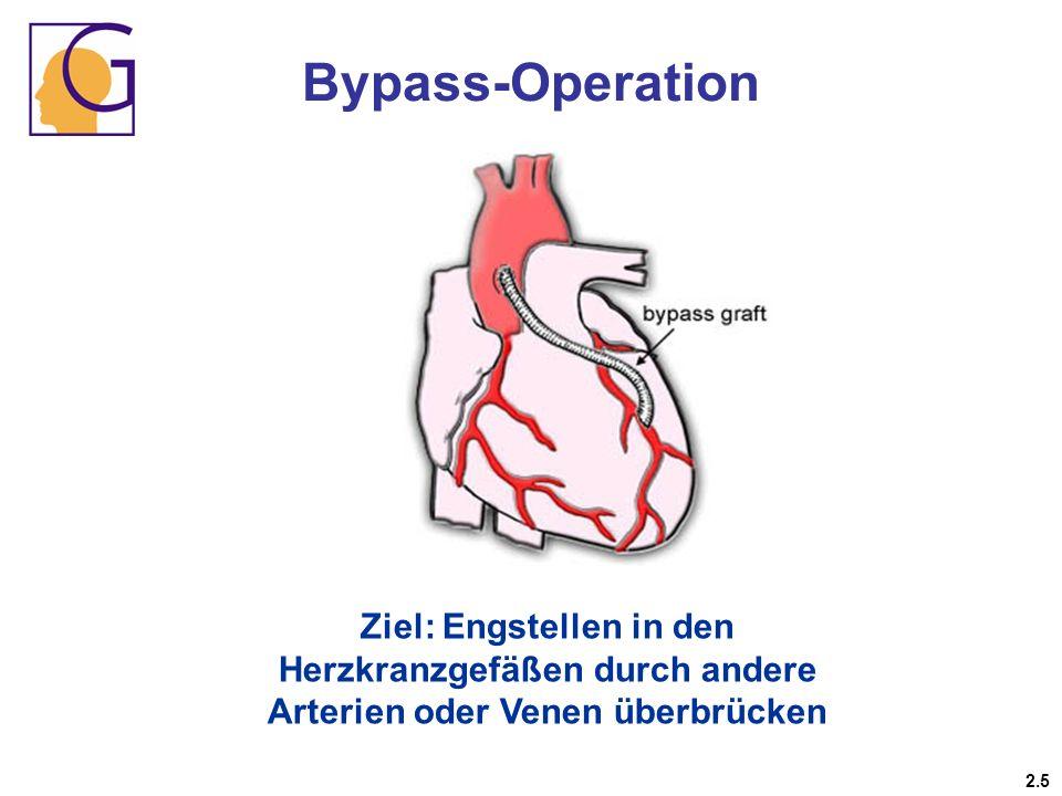 Bypass-Operation Ziel: Engstellen in den Herzkranzgefäßen durch andere Arterien oder Venen überbrücken.