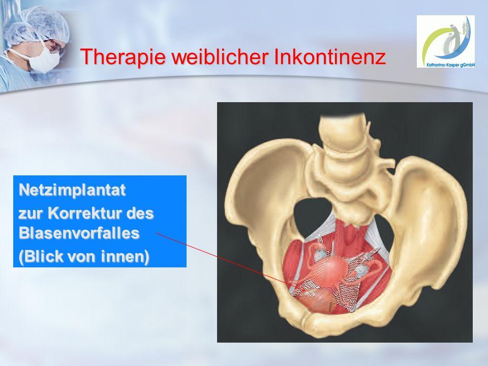Therapie weiblicher Inkontinenz