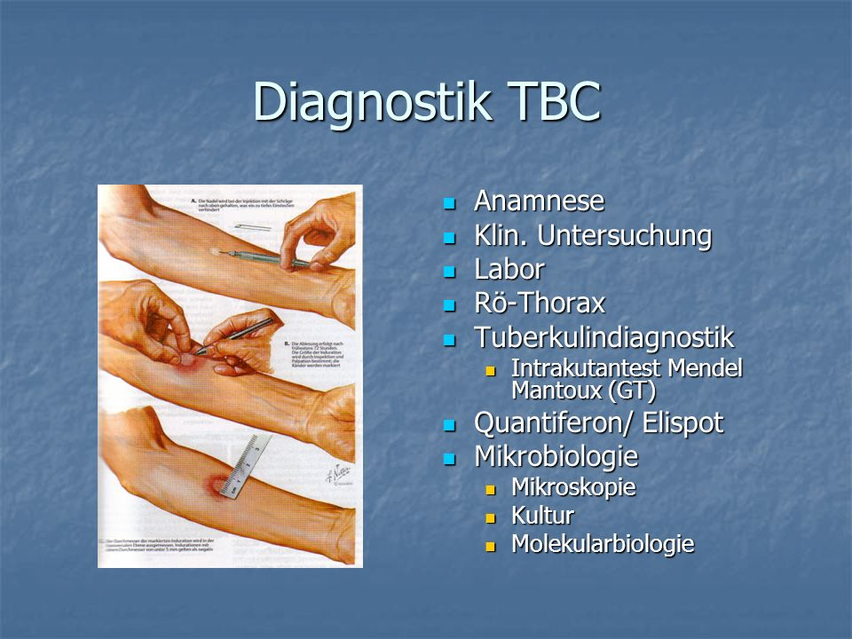 Diagnostik TBC Anamnese Klin. Untersuchung Labor Rö-Thorax