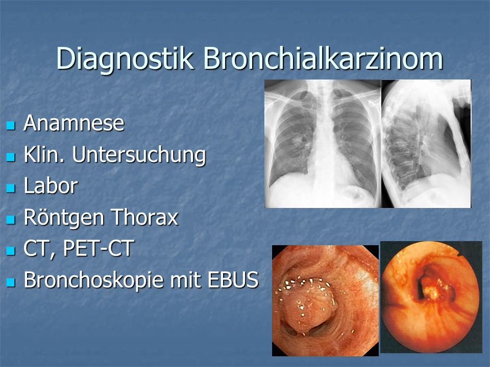 Diagnostik Bronchialkarzinom