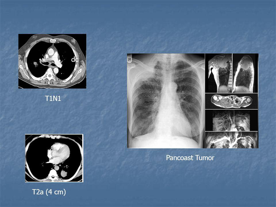 dc T1N1 Pancoast Tumor T2a (4 cm)