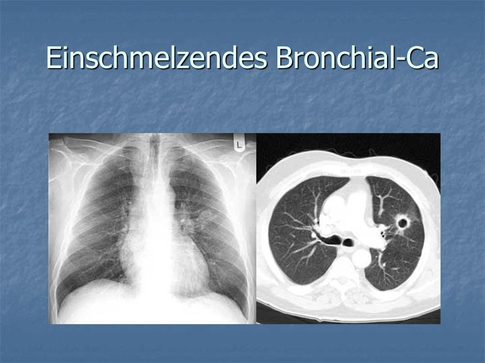 Einschmelzendes Bronchial-Ca