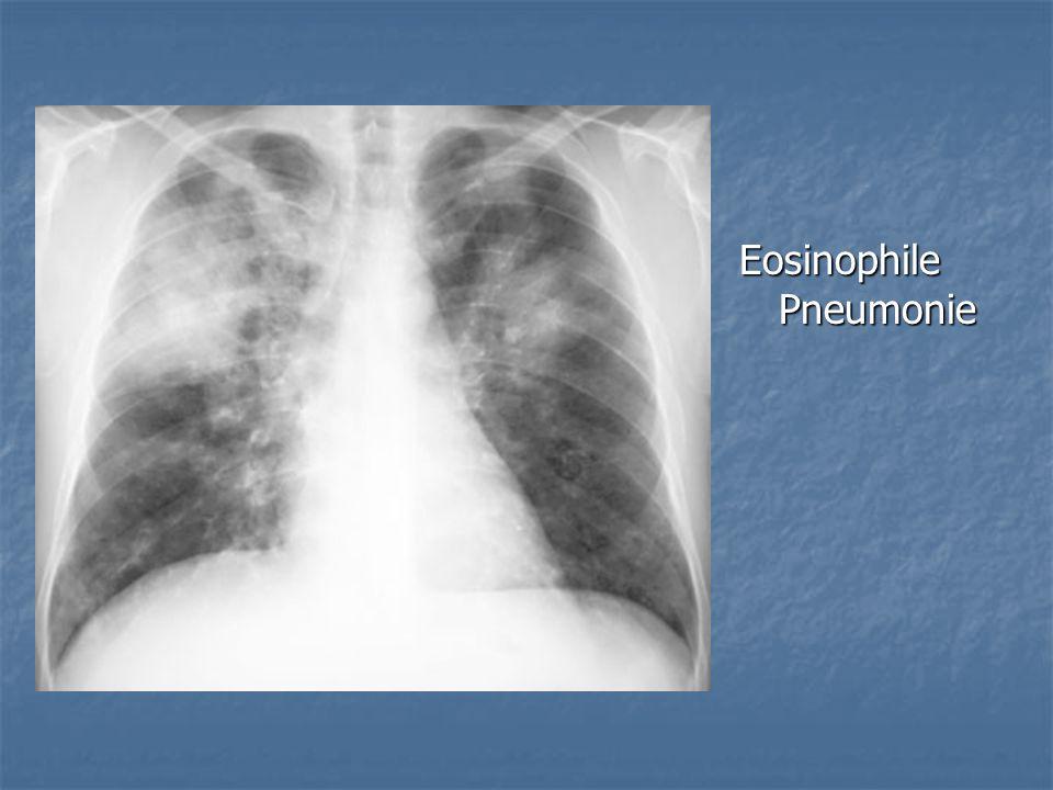 Eosinophile Pneumonie