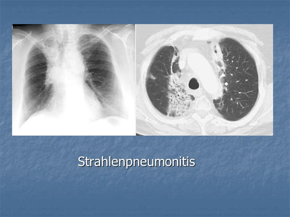 Strahlenpneumonitis