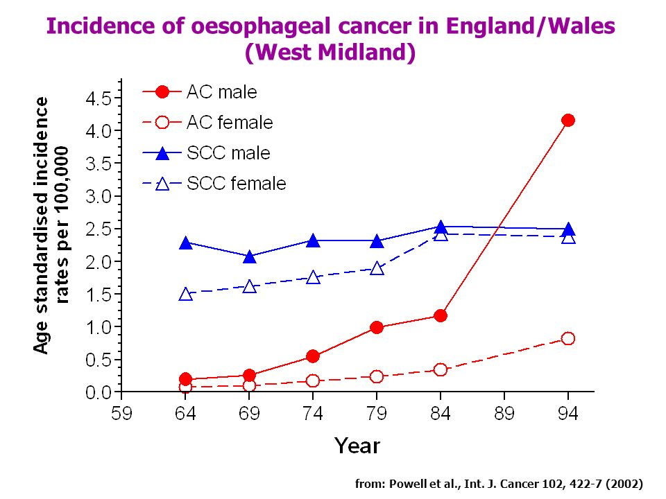 Incidence of oesophageal cancer in England/Wales
