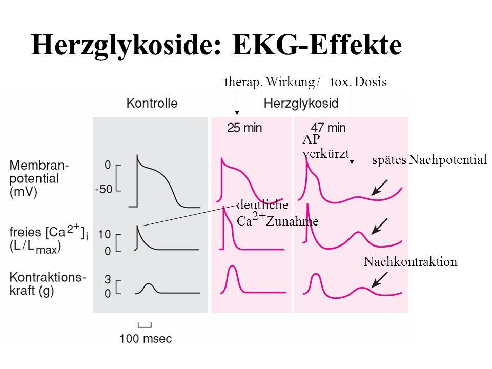 Herzglykoside: EKG-Effekte