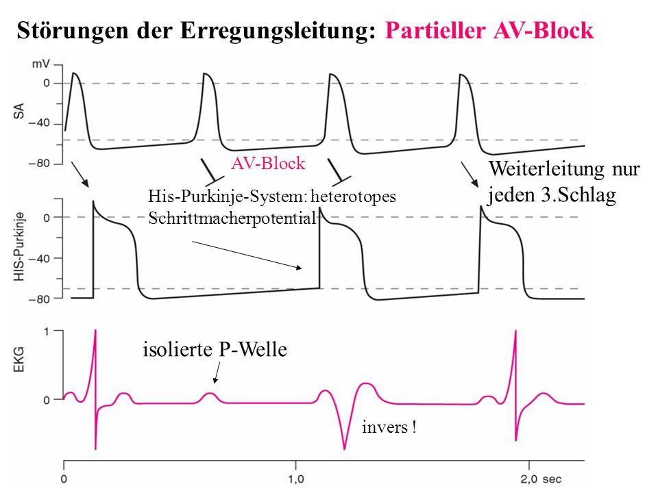 Störungen der Erregungsleitung: Partieller AV-Block