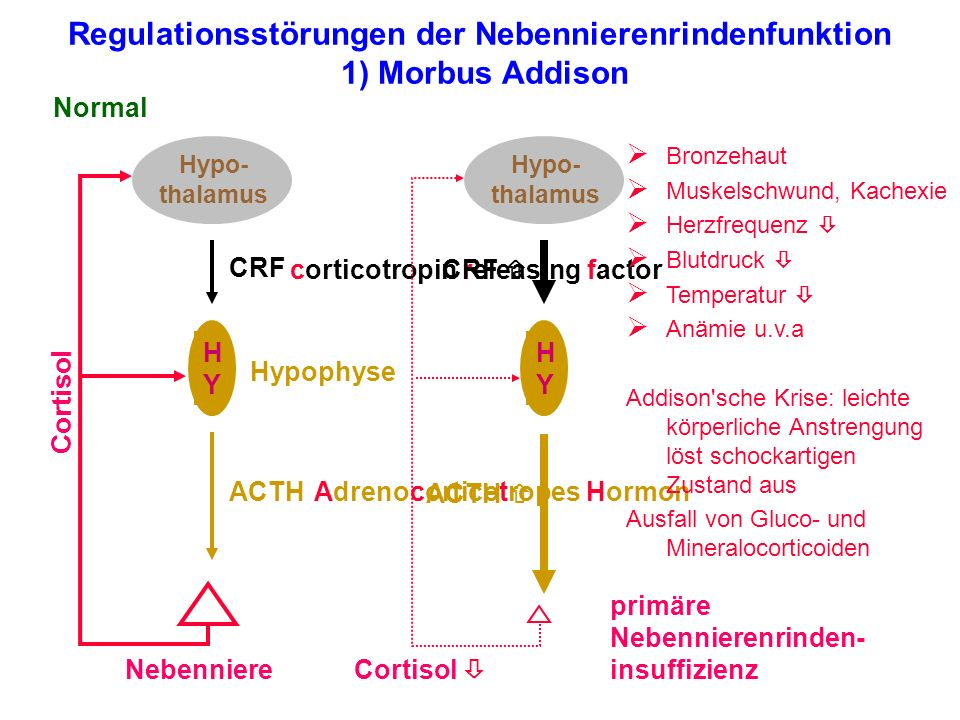 Regulationsstörungen der Nebennierenrindenfunktion 1) Morbus Addison