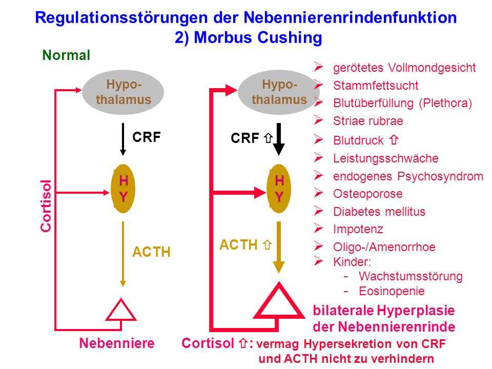 Regulationsstörungen der Nebennierenrindenfunktion 2) Morbus Cushing