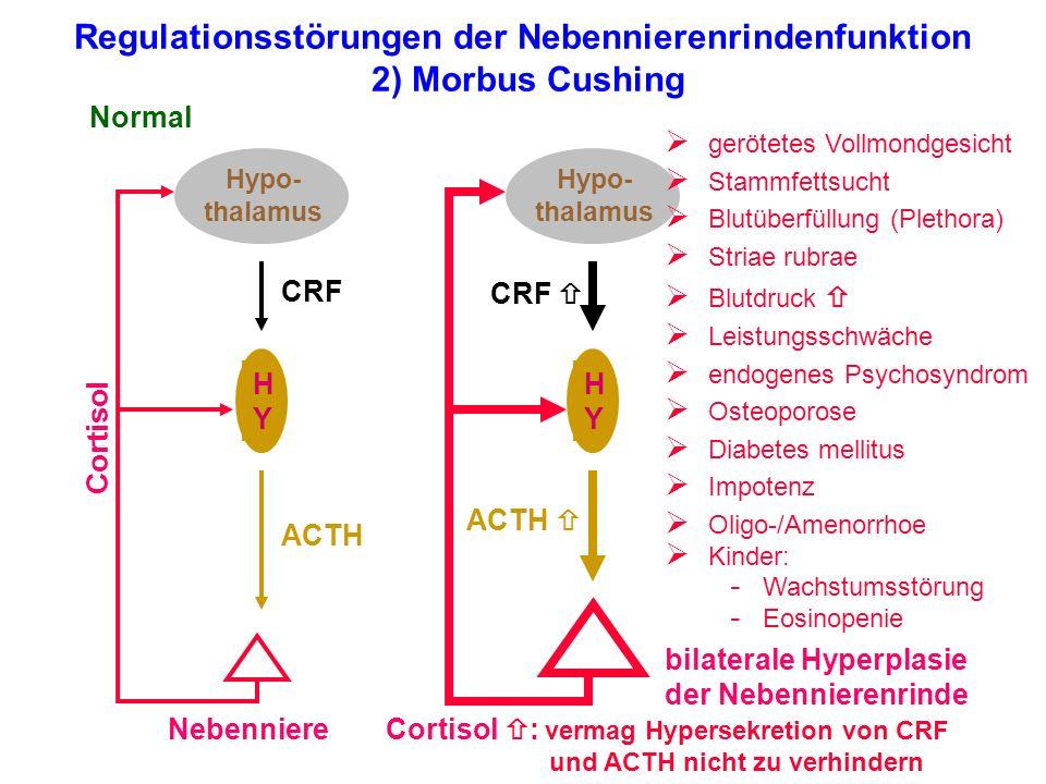 Regulationsstörungen der Nebennierenrindenfunktion 2) Morbus Cushing