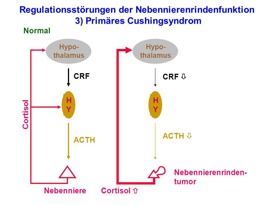 Regulationsstörungen der Nebennierenrindenfunktion 3) Primäres Cushingsyndrom