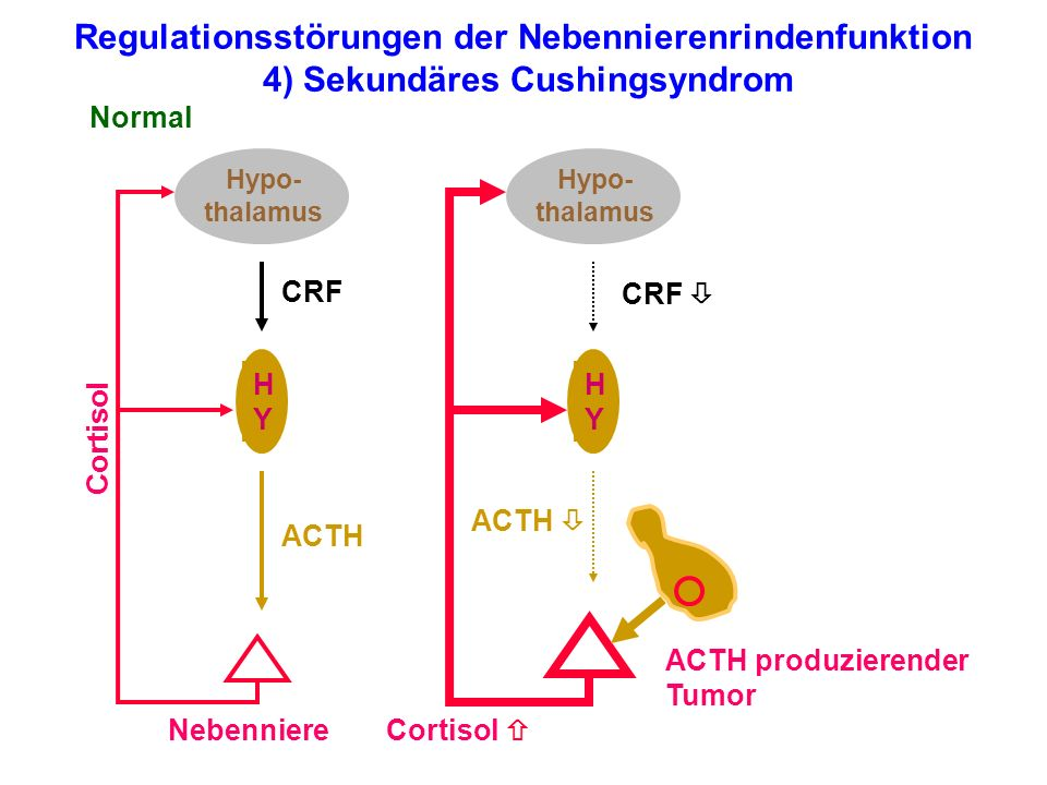 Regulationsstörungen der Nebennierenrindenfunktion 4) Sekundäres Cushingsyndrom