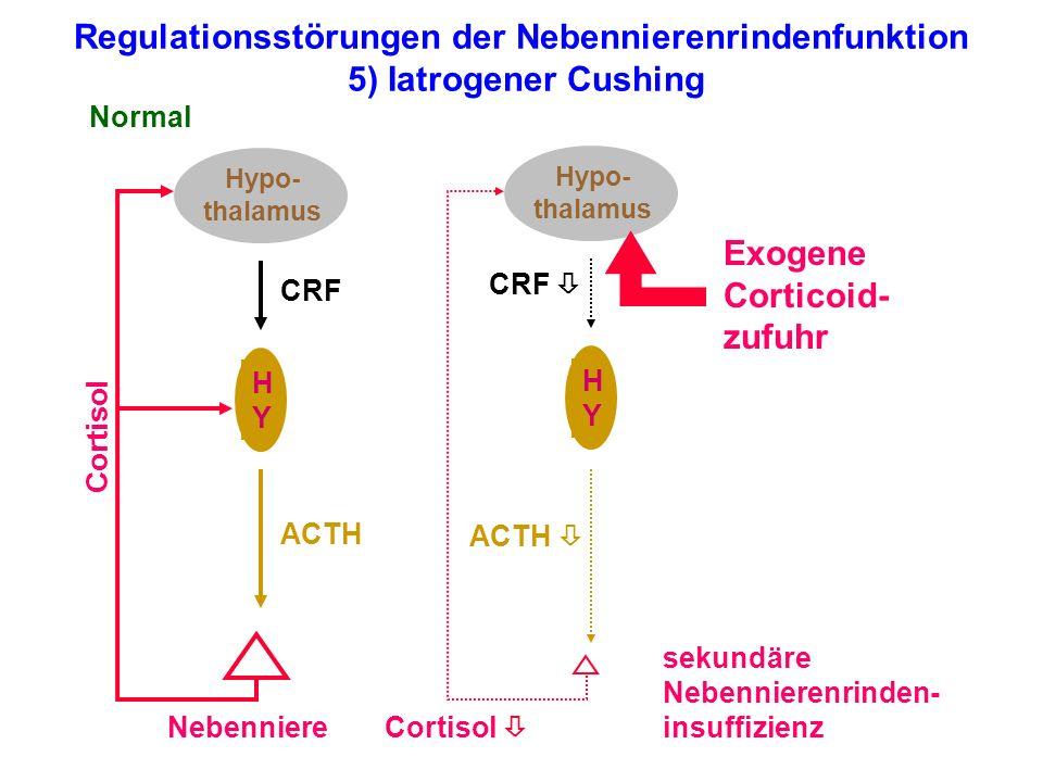 Exogene Corticoid-zufuhr