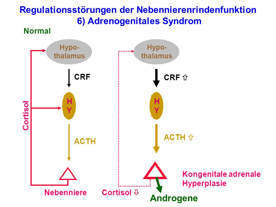Regulationsstörungen der Nebennierenrindenfunktion 6) Adrenogenitales Syndrom