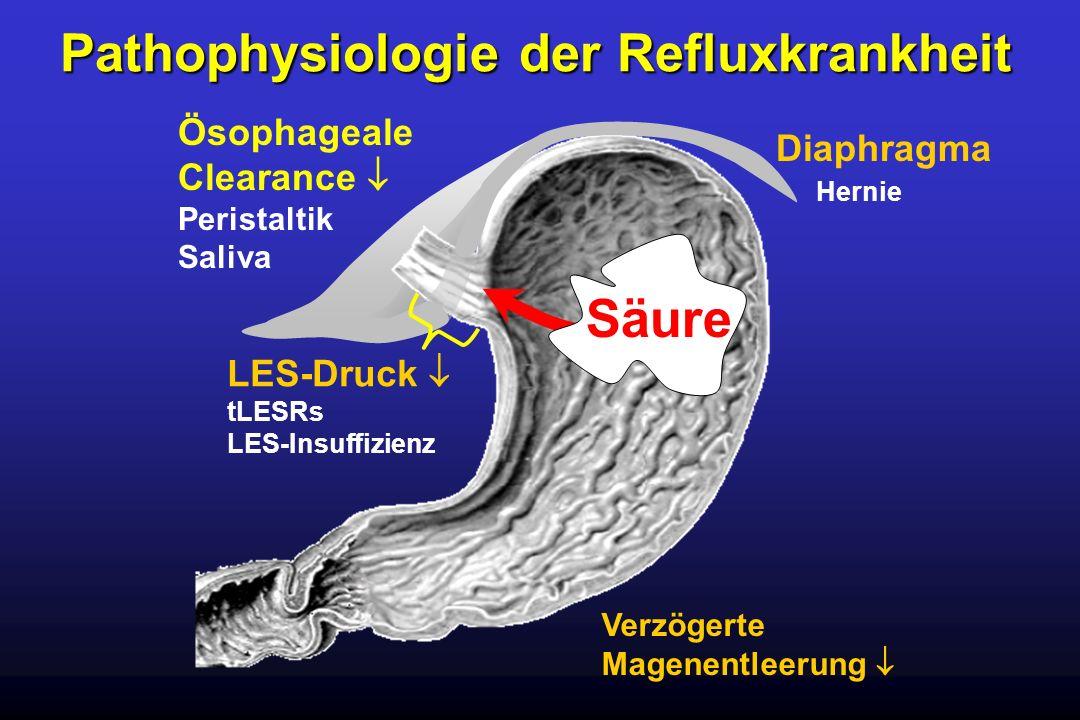 Pathophysiologie der Refluxkrankheit