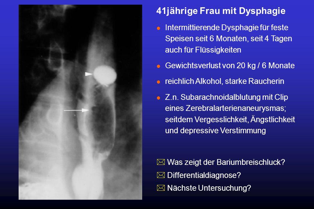 41jährige Frau mit Dysphagie