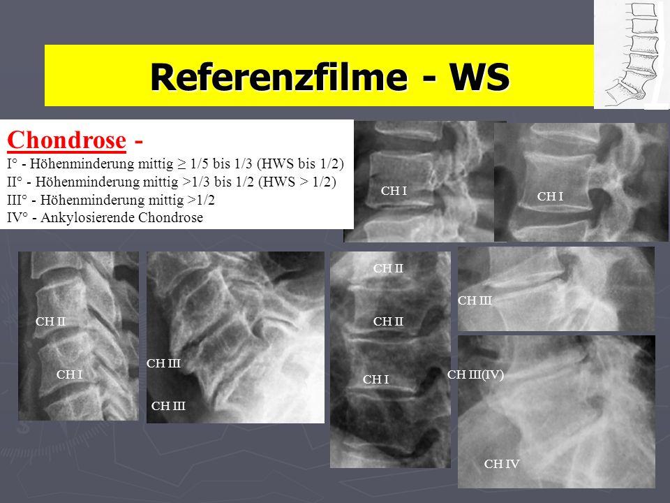 Referenzfilme - WS Chondrose - I° - Höhenminderung mittig ≥ 1/5 bis 1/3 (HWS bis 1/2) II° - Höhenminderung mittig >1/3 bis 1/2 (HWS > 1/2)