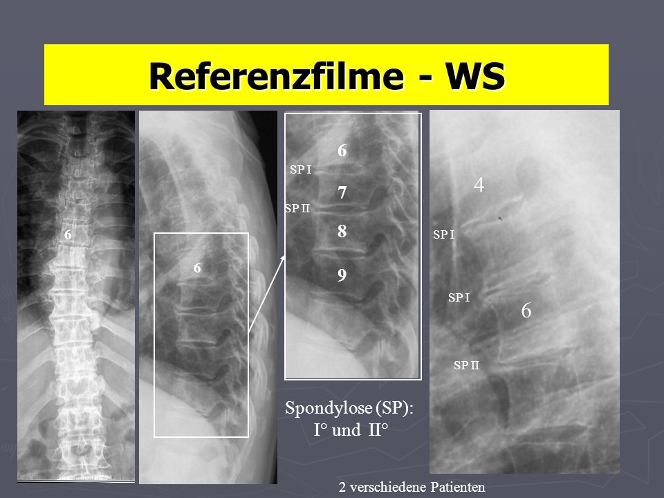 Referenzfilme - WS 4 6 6 7 8 9 Spondylose (SP): I° und II° 6 6