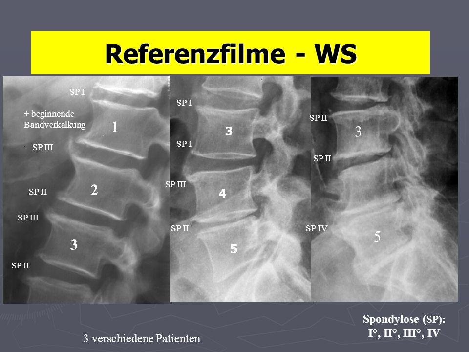 Referenzfilme - WS 1 3 2 5 3 3 4 5 Spondylose (SP): I°, II°, III°, IV