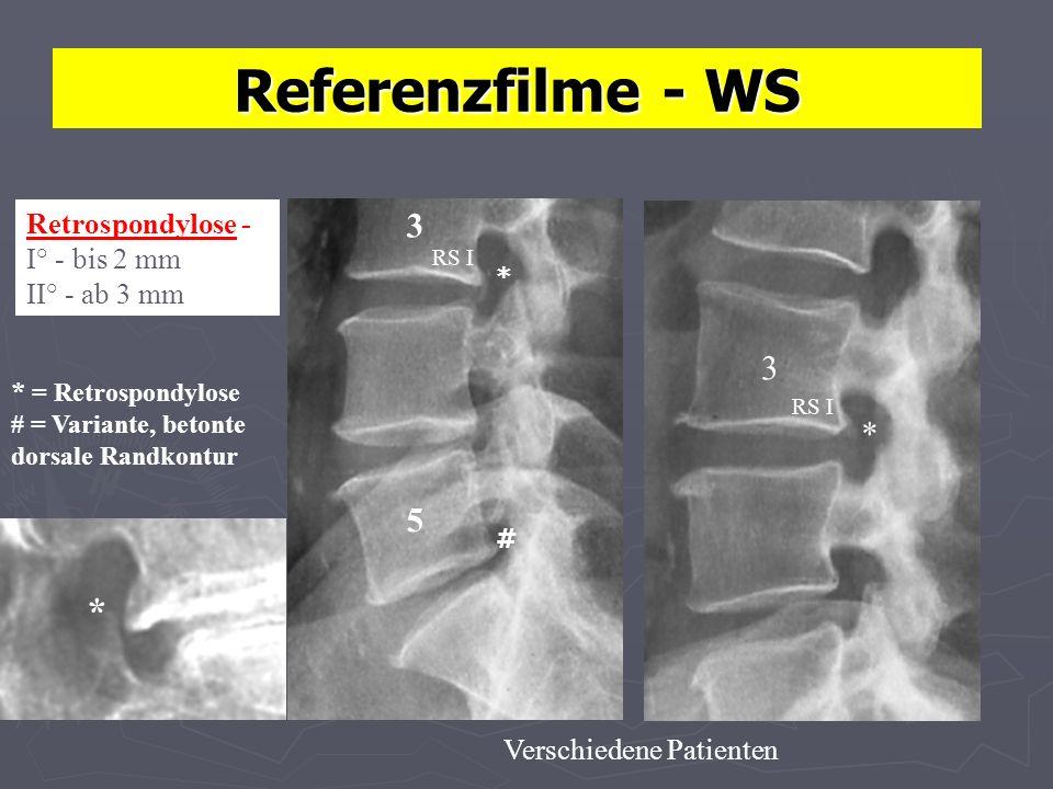Referenzfilme - WS * 3 3 * 5 Retrospondylose - I° - bis 2 mm