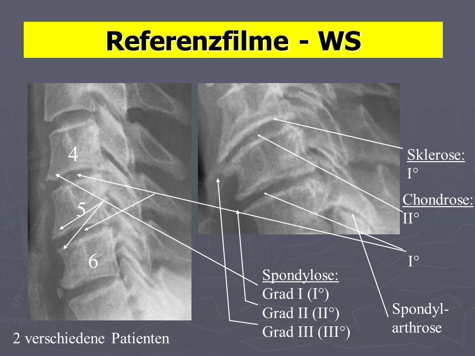 Referenzfilme - WS 4 5 I° 6 Sklerose: I° Chondrose: II° Spondylose: