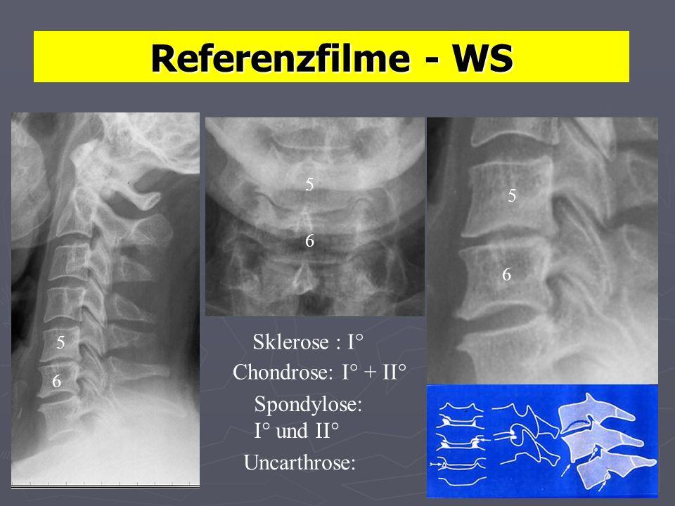 Referenzfilme - WS Sklerose : I° Chondrose: I° + II° Spondylose: