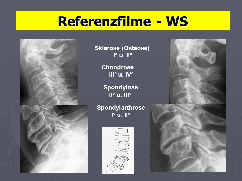 Referenzfilme - WS Sklerose (Osteose) I° u. II° Chondrose III° u. IV°