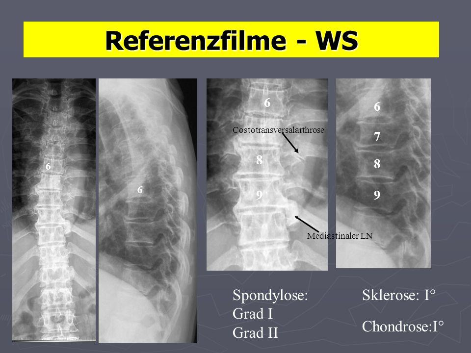 Referenzfilme - WS Spondylose: Grad I Grad II Sklerose: I°