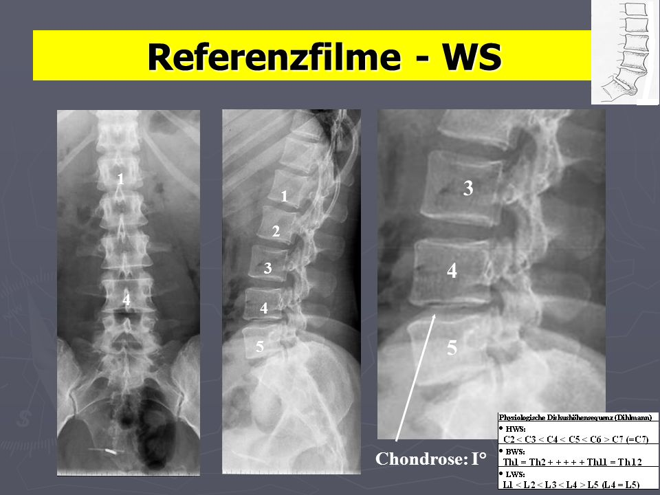 Referenzfilme - WS Chondrose: I° 3 4 5 1 1 2 3 4 4 5