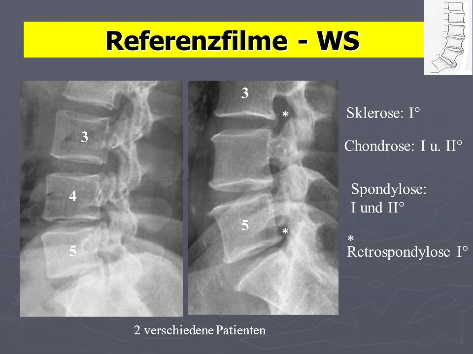 Referenzfilme - WS 3 Sklerose: I° 3 Chondrose: I u. II° Spondylose: 4