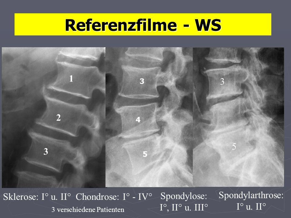 Referenzfilme - WS 1 2 3 5 3 Sklerose: I° u. II° Chondrose: I° - IV°