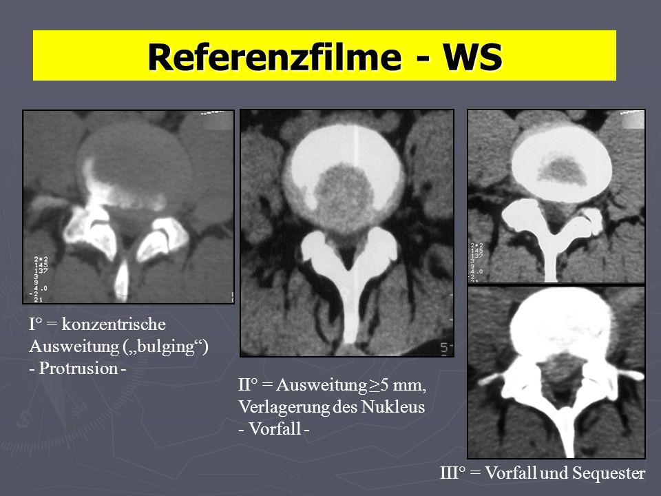 "Referenzfilme - WS I° = konzentrische Ausweitung (""bulging )"